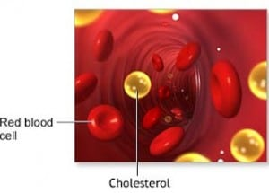 Blood vessel with a red blood cell and cholesterol