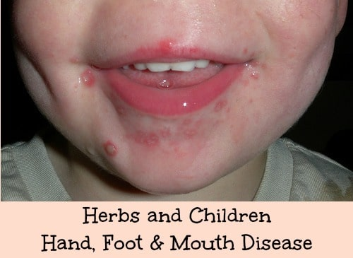 Hand, Foot & Mouth Disease | Features | CDC