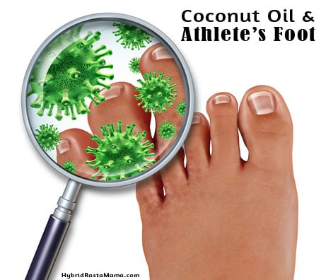 Coconut Oil for Athlete's Foot (Tinea Pedis) | Hybrid Rasta Mama