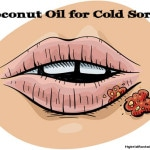 Coconut Oil For Cold Sores (Plus a few other natural remedies)