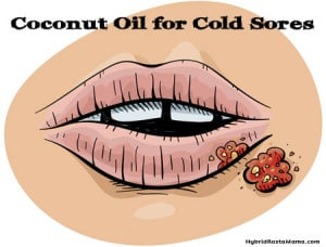 Do you suffer from cold sore outbreaks? Want to stop the cycle? Learn more about coconut oil for cold sores along with a few other natural remedies from HybridRastaMama.com.
