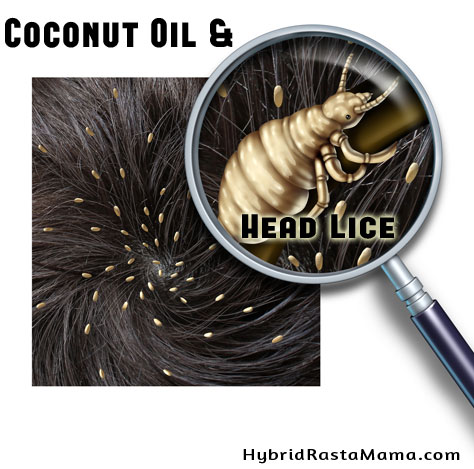Coconut Oil and Head Lice