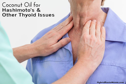 Coconut Oil for Thyroid Health (Including Hashimoto's)