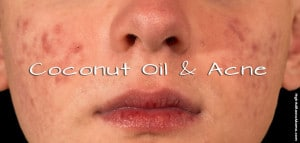 Coconut Oil and Acne: HybridRastaMama.com