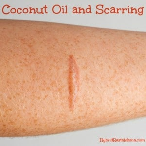 Coconut Oil and Scarring: HybridRastaMama.com