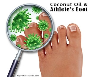 Coconut Oil for Athlete's Foot (Tinea Pedis)