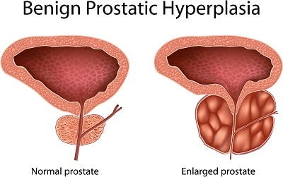 Coconut Oil and Men's Health Issues – Enlarged Prostate (Benign Prostatic Hyperplasia)
