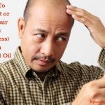 How To Prevent or Stop Hair Loss (Baldness) With Coconut Oil
