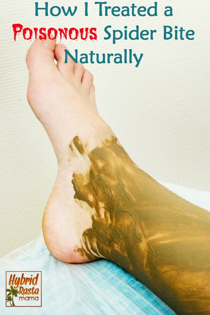 Ankle and foot covered in betonite clay. The woman is treating a spider bite at home.