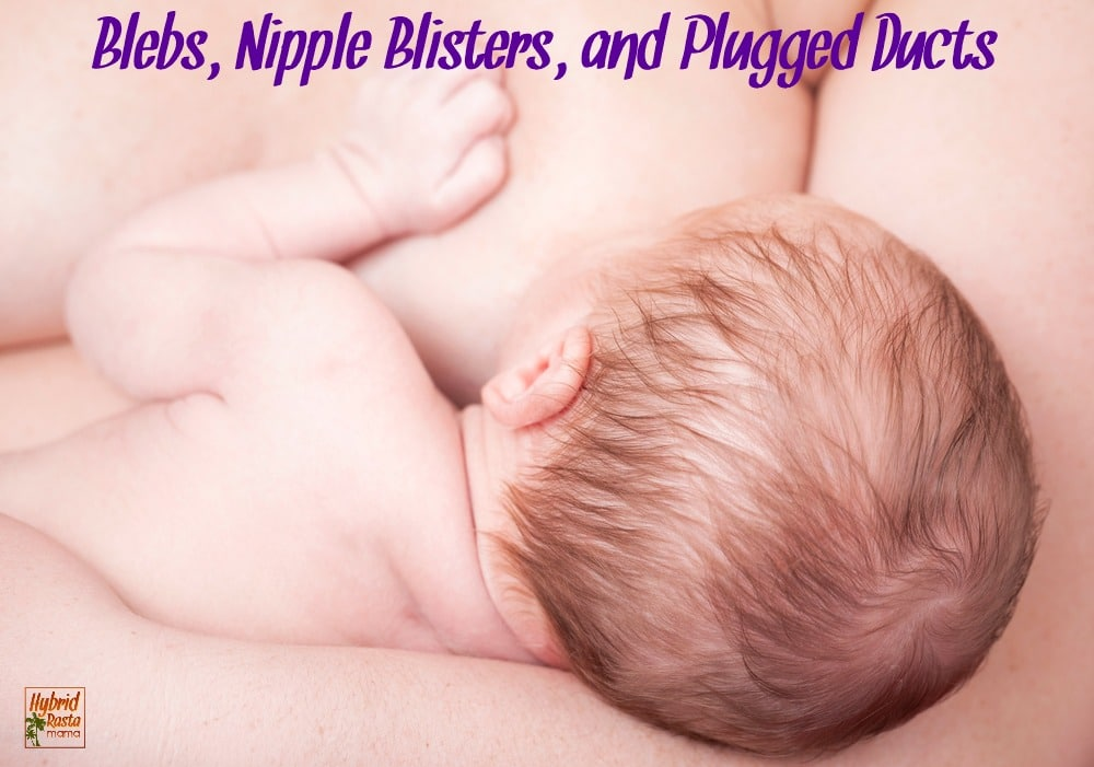 Do you have pain and soreness as a result of breastfeeding? Noticing some blister-like pimples on your nipples? Learn everything you need to know about blebs, nipple blisters, and plugged ducts + how to treat them naturally from HybridRastaMama.com.