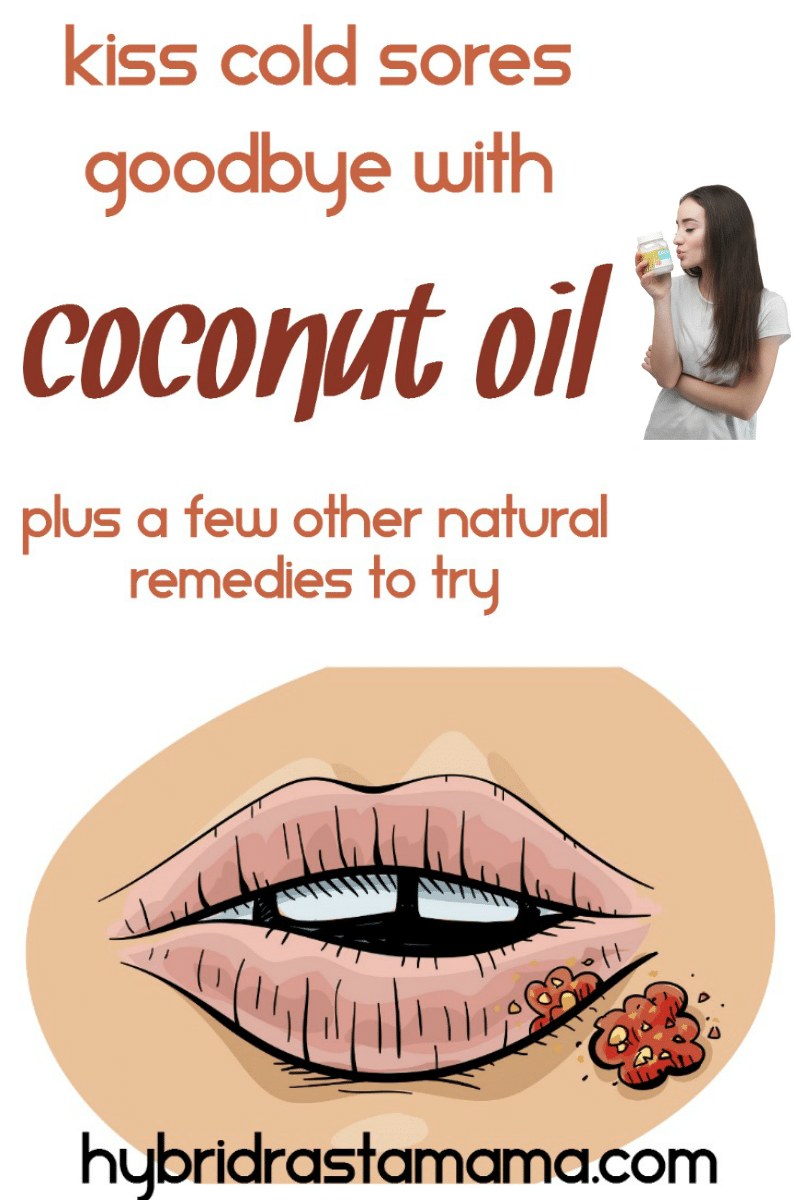 Coconut Oil For Cold Sores + Other Home Remedies | Hybrid