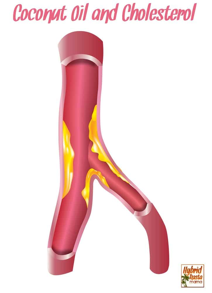 An artery with cholesterol illustration
