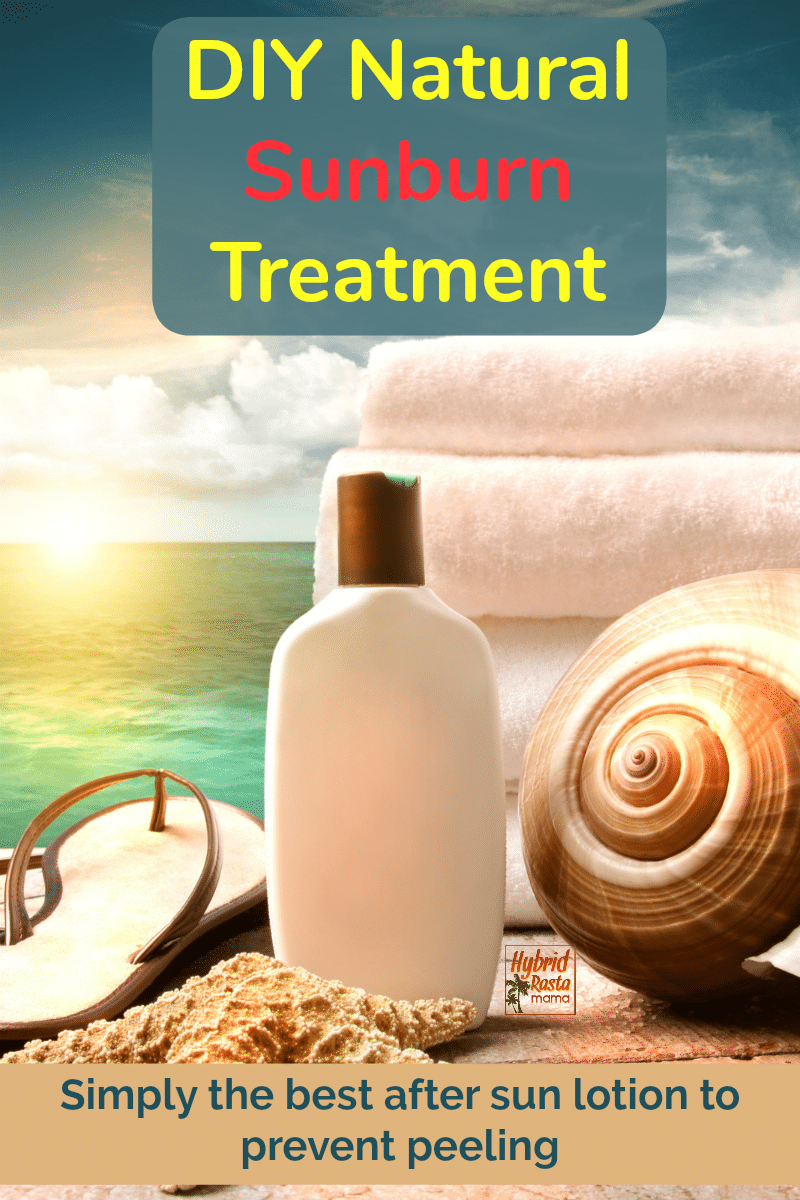A bottle of a DIY natural sunburn treatment with coconut oil on a beach next to white towels and a pair of flipflops