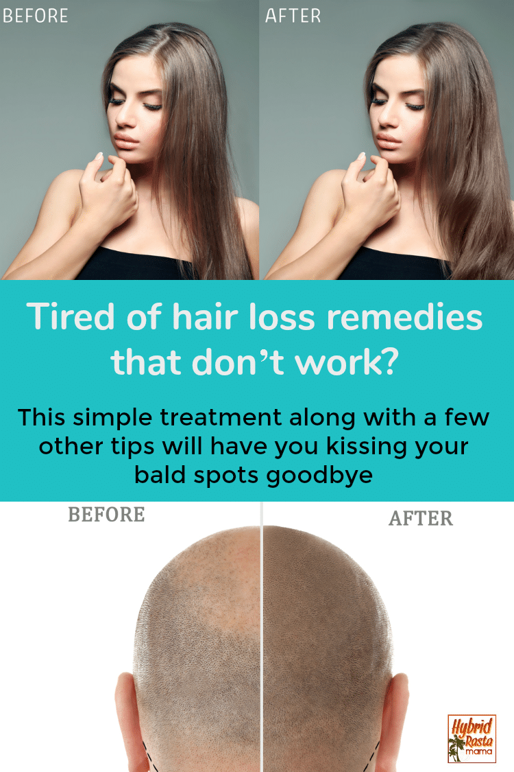 Before and after photos of hair loss after trying coconut oil for baldness.