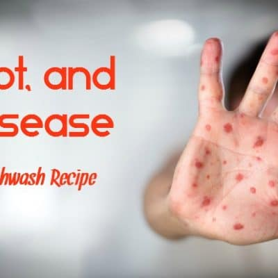 Hand, Foot, and Mouth Disease In Children + An Herbal Mouthwash Recipe