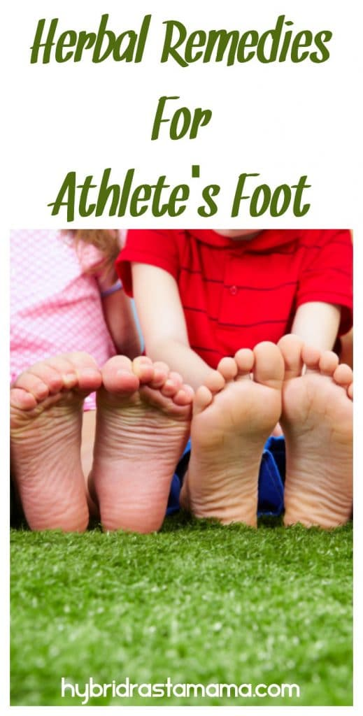 Bottoms of children's feet who have been using herbal remedies for athlete's foot