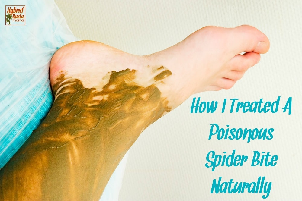 A spider bite can be a scary thing and often times warrants a trip to a medical professional. However, lots of spider bites can be treated naturally with affordable toxin removing remedies. Learn how I treated a poisonous spider bite naturally.