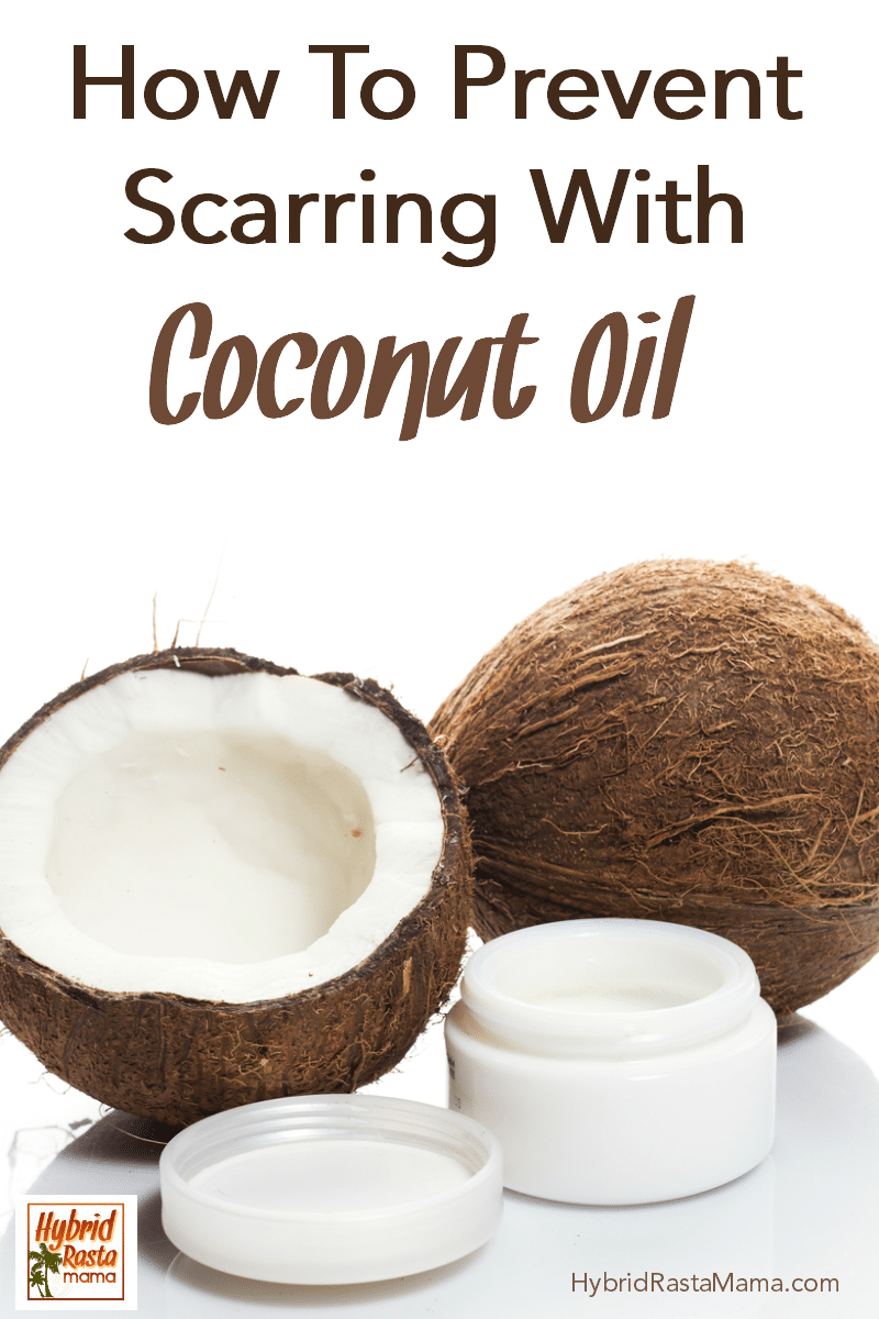 "One half coconut and one full coconut with a cosmetic jar of coconut oil in front. The caption say ""how to prevent scarring with coconut oil."""