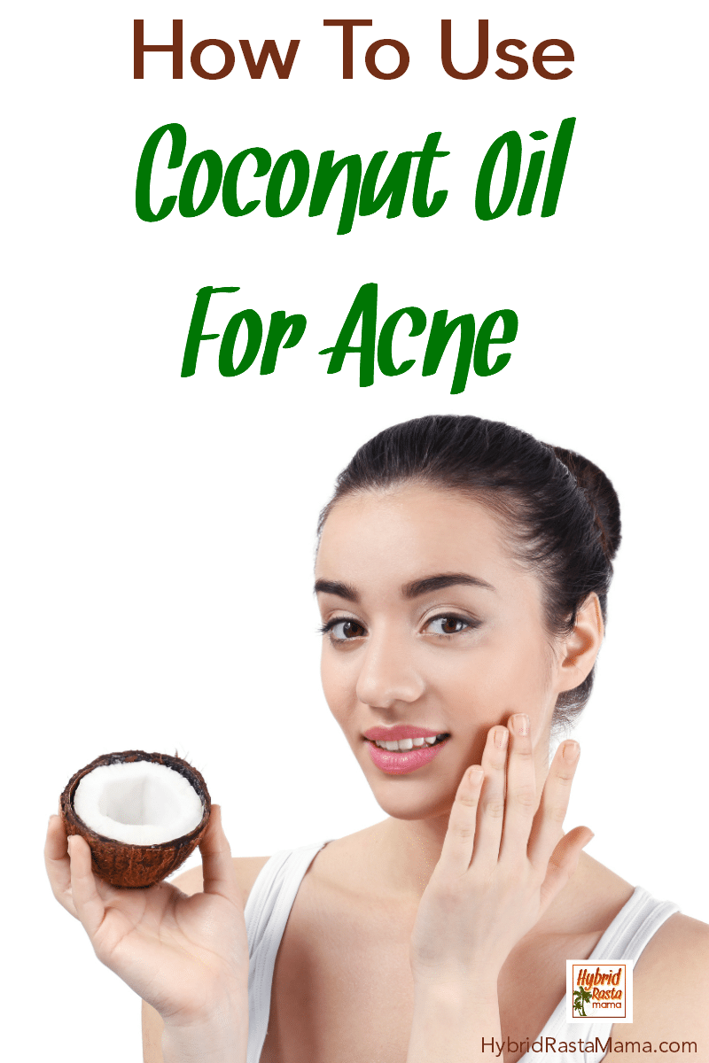 A woman with a clean face holding a coconut. She is putting coconut oil on her face to prevent acne.