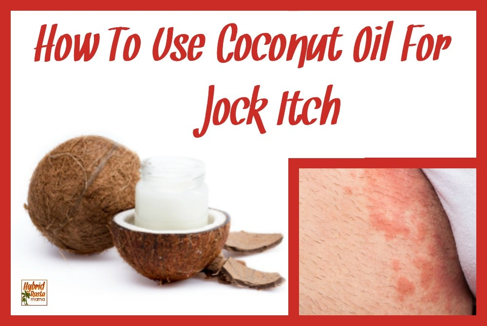 Small jar of coconut oil sitting inside half of coconut shell. Second image with jock itch rash on man's groin.