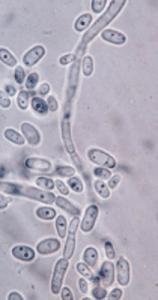 A microscopic look at mycotoxins