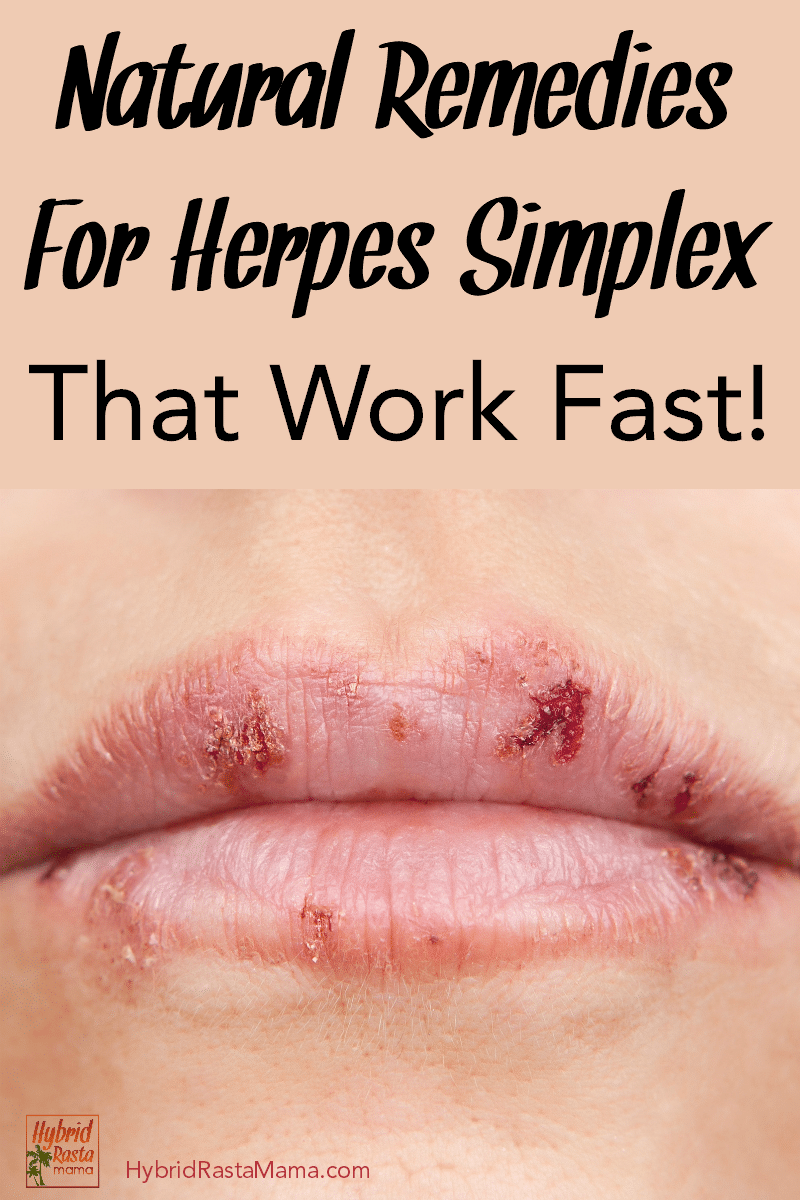 A woman with herpes on her lips