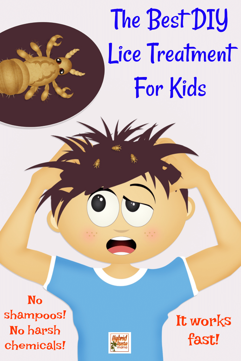 "A cartoon boy with head lice scratching his head and lice and lice eggs fly off. The words ""the best DIY lice treatment for kids"" appear to the boy's right."