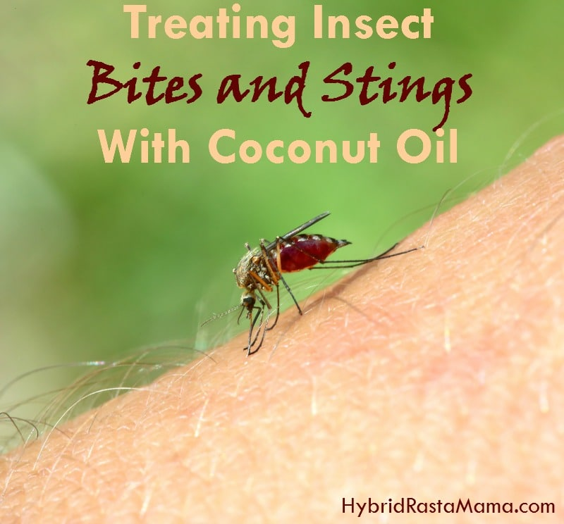 Coconut Oil for Bug Bites and Bee Stings