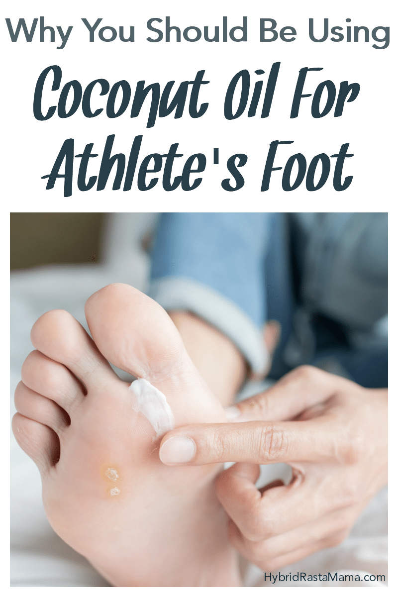 A woman wearing jeans rubbing coconut oil on her foot. She has athlete's foot.